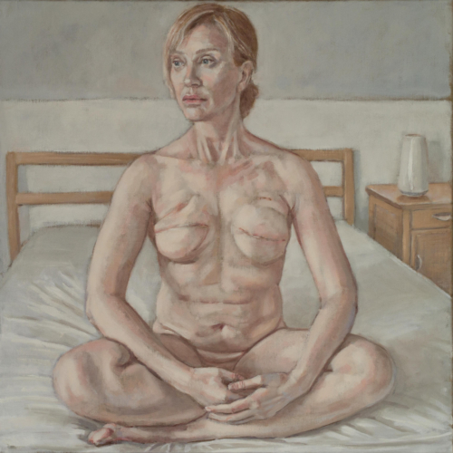 cancer survivor breast mastectomy